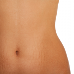 Reducing StretchMarks Naturally
