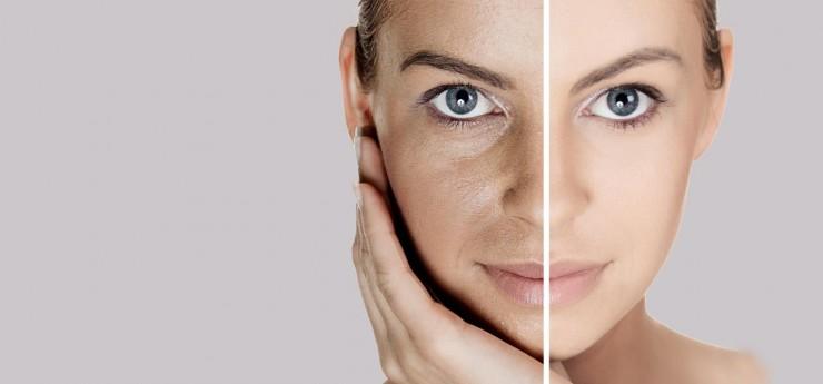 treat open pores naturally