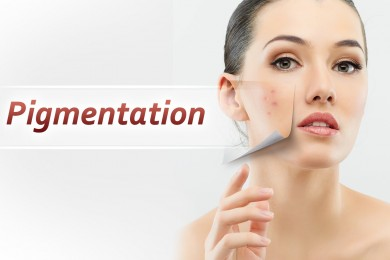 Get Rid Of Pigmentation Naturally