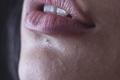Get beautiful Lips This Winter And Say Bye Bye To The Chapped Ones With These Tricks